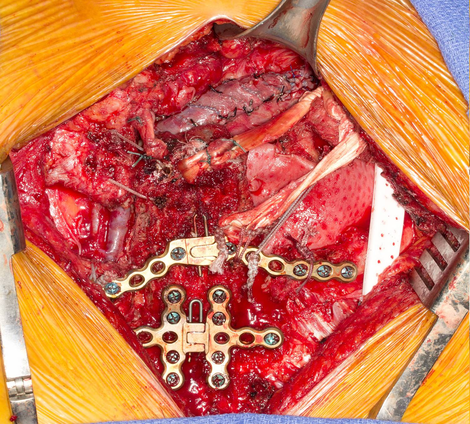 Savs Brachiocephalic Vein Bypass With Sternal Reconstruction For